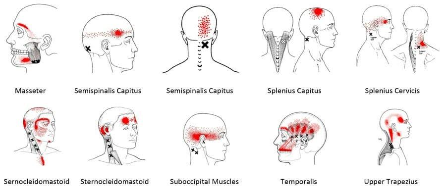 Headache Causes - Mayo Clinic